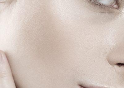 Kärl- och pigmentborttagning